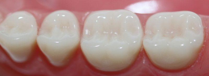 Dental Fillings San Diego | Tooth Cavity Fillings in San Diego